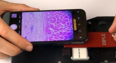 SmartMicroOptic dengan Smartphone Lihat Bakteri